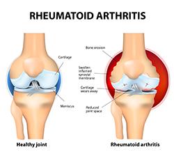 Fibromyalgia and Rheumatoid Arthritis