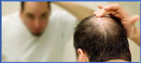 Platelet Rich Plasma (PRP) Grows Hair